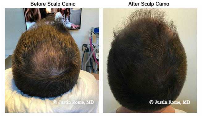 Scalp Camo Before & After